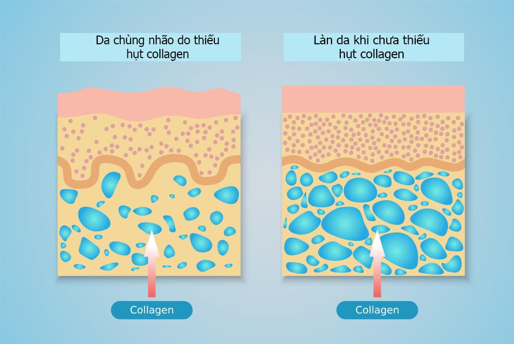 Bước sang tuổi 25, collagen trong cơ thể suy giảm dần 1% mỗi năm