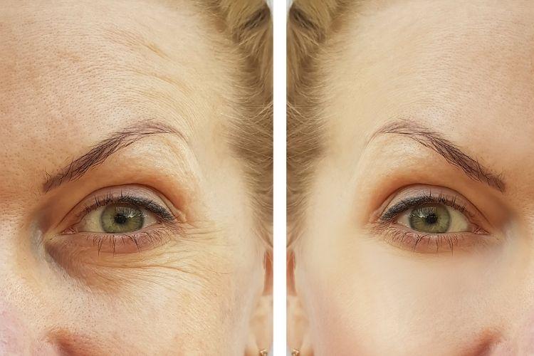 Tác dụng của collagen với cơ thể
