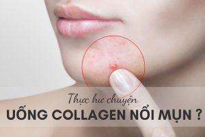 Giải đáp vấn đề băn khoăn của bạn đọc: Uống Collagen bị nổi mụn?